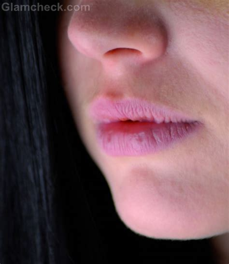 cure for dry ed lips picture 15