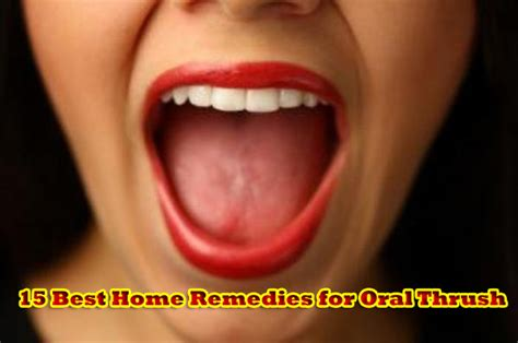 home remedy for a yeast infection picture 7