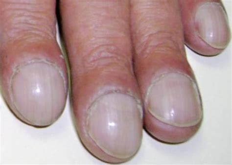 white line in nail picture 5