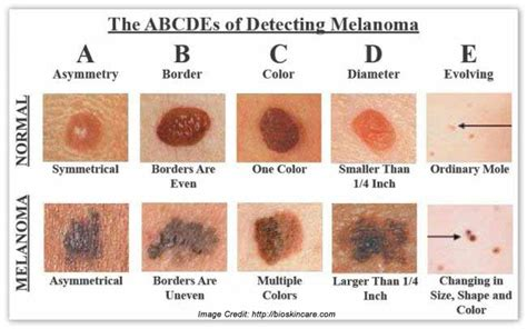 skins of skin cancer picture 10
