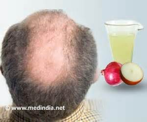 hair loss and vaccinations picture 3