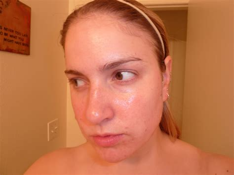 adult acne picture 6