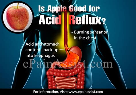 acid indigestion relief and apples picture 10