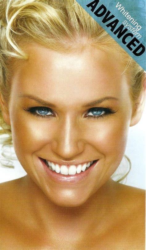 alberta teeth whitening picture 1