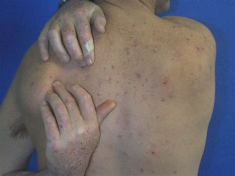 are hives a sign of liver distress? picture 7