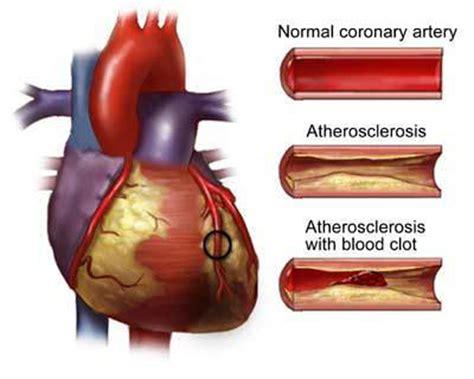 coronary heart disease picture 3