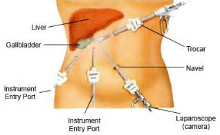 laparoscopic gall bladder surgery picture 3
