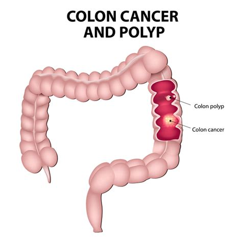 polyps on your colon picture 10