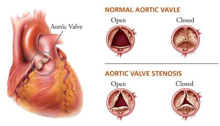 erectile dysfunction and aortic heart valve picture 1