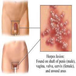 what does a vagina look after herpes picture 5