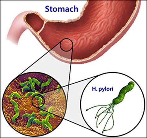what herb clear of bacteria in the stomach picture 2