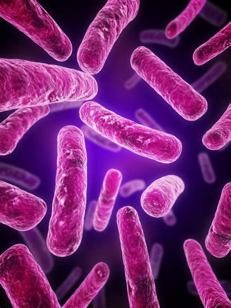 types of bacterial infections picture 7