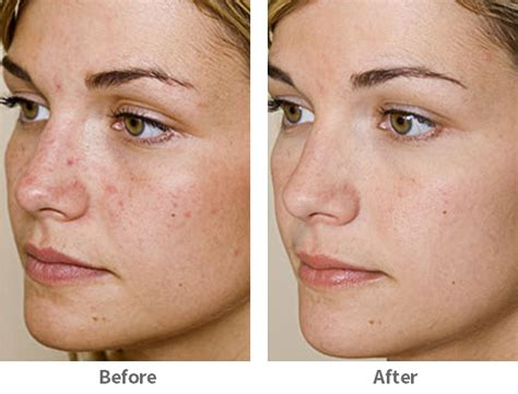 acupunture for acne picture 5