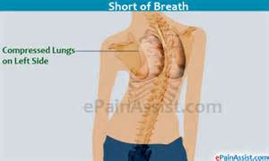 bilateral lumbar and thoracic paravertebral muscle spasms picture 11