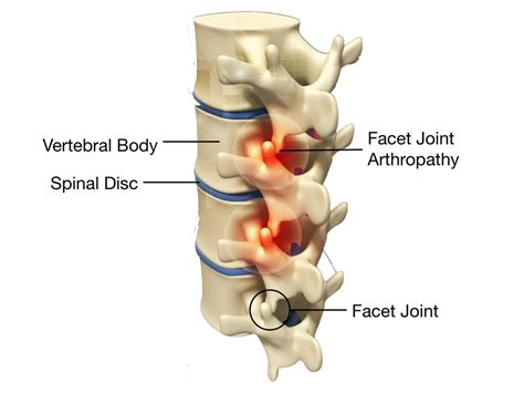 facet joint injections picture 5