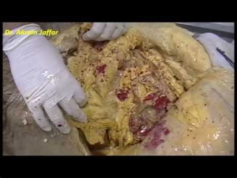 2013 surgery burn fat inside your stomach picture 2