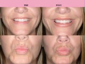 lip enhancment surgery picture 14