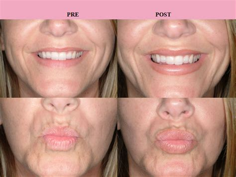 how much does lip augmentation cost picture 3