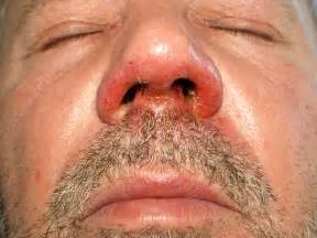 skin infections boils picture 11