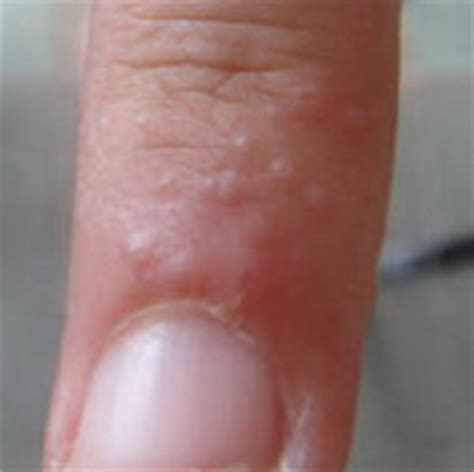 huge skin blisters on hand photos picture 10