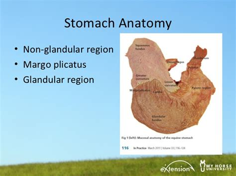 stomach ulcer diet picture 3