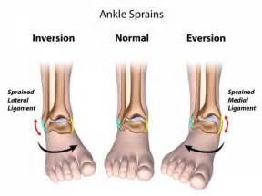 how does application of ice to the ankle picture 10