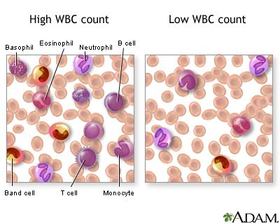 high white blood count normal neutrophil picture 2