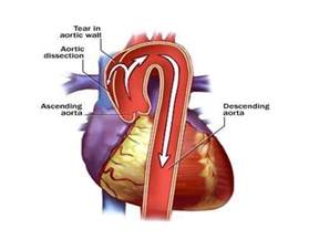 High blood pressure symtoms picture 7