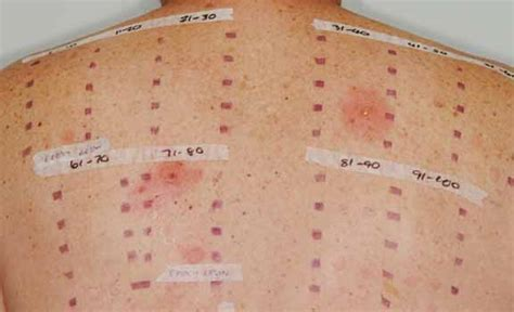 skin patch test picture 1