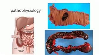 colon obstruction picture 19