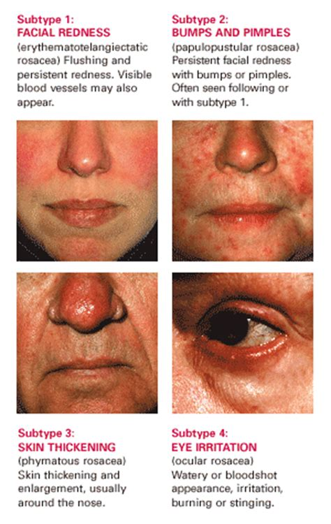 rosacea stage 4 picture 11