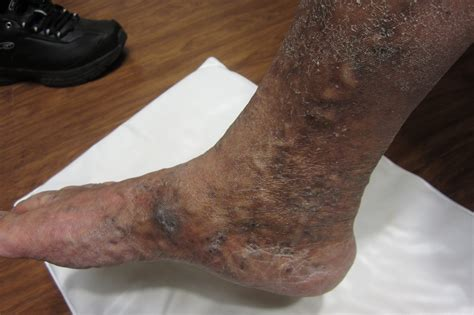 graves disease and skin changes picture 6
