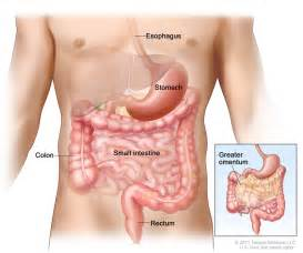 how are gastrointestinal stromal tumor of the small intestine diagnosed picture 2