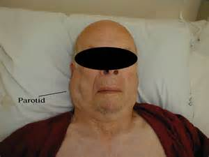 thyroid enlarged thyroid lymph picture 21