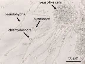 fungal infection-monilial spore picture 13