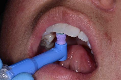 can dental hygienist remove cement from teeth with picture 1