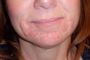face skin rash picture 11