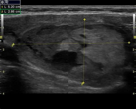 colloid cyst thyroid ultrasound picture 2