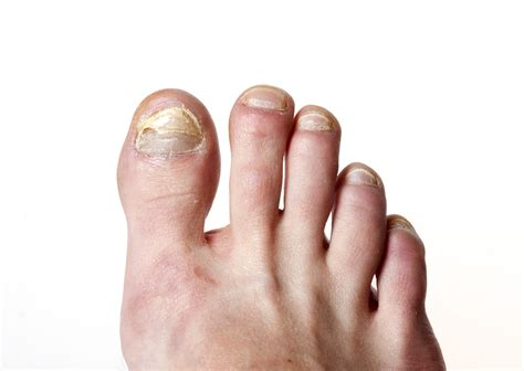 circulation and toenail fungus picture 5