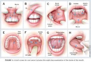 what does oral herpes look like picture 13