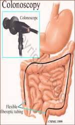 colon cleansing doctors view picture 1