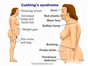 cushings disease in the aging picture 5