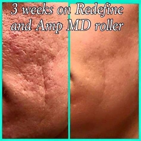 do phytoceramides help acne picture 4