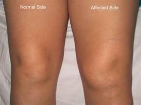 swollen knee joint picture 9