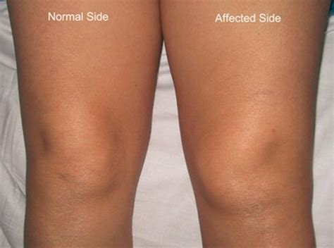 yeast infection in knee joint picture 6