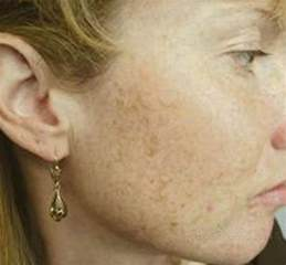 dark patches on skin when drinking picture 2