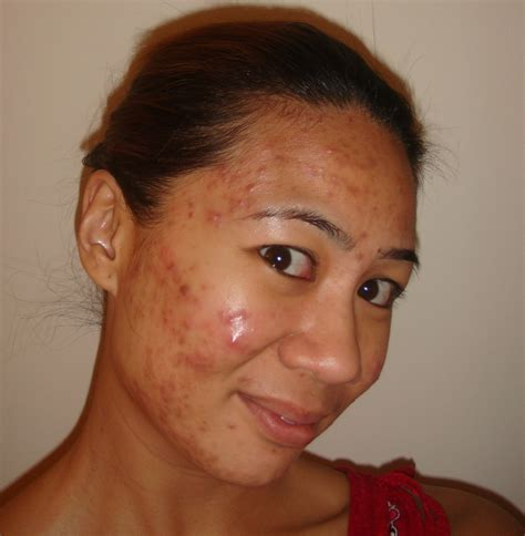 brown patches on face picture 1