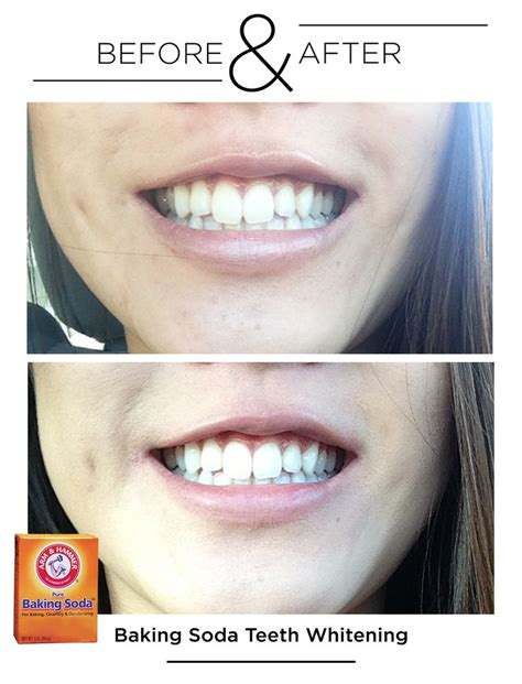 baking soda and peroxide to whiten teeth picture 2