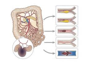 bowel ischemia symptoms picture 6