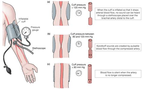 Arterial blood pressure picture 13